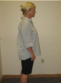 Holly has been able to maintain her weight after finding a solution with Advanced Medical Weight Loss.